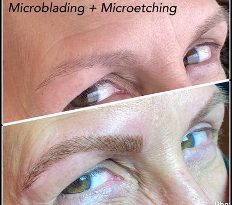 Micro pigmentation 70