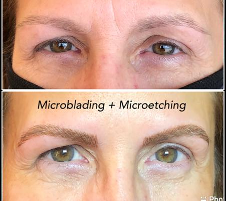 Micro pigmentation 75