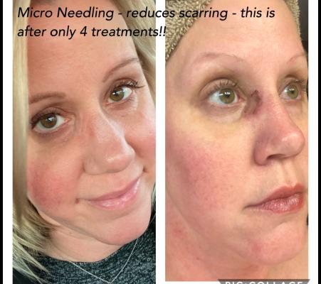 Micro-Needling 5