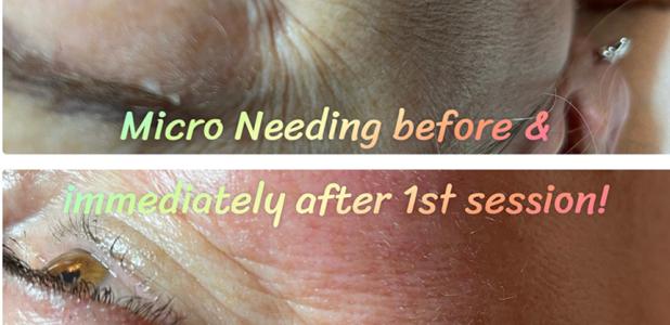 Micro-Needling 20